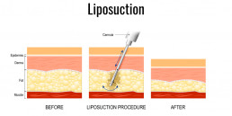 Liposuktion-before-after